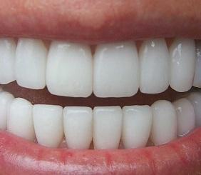 caracteristicas de los dientes