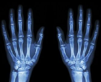 caracteristicas de los rayos x